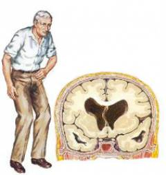 Mexidolis širdies nepakankamumui - Hipertenzija November