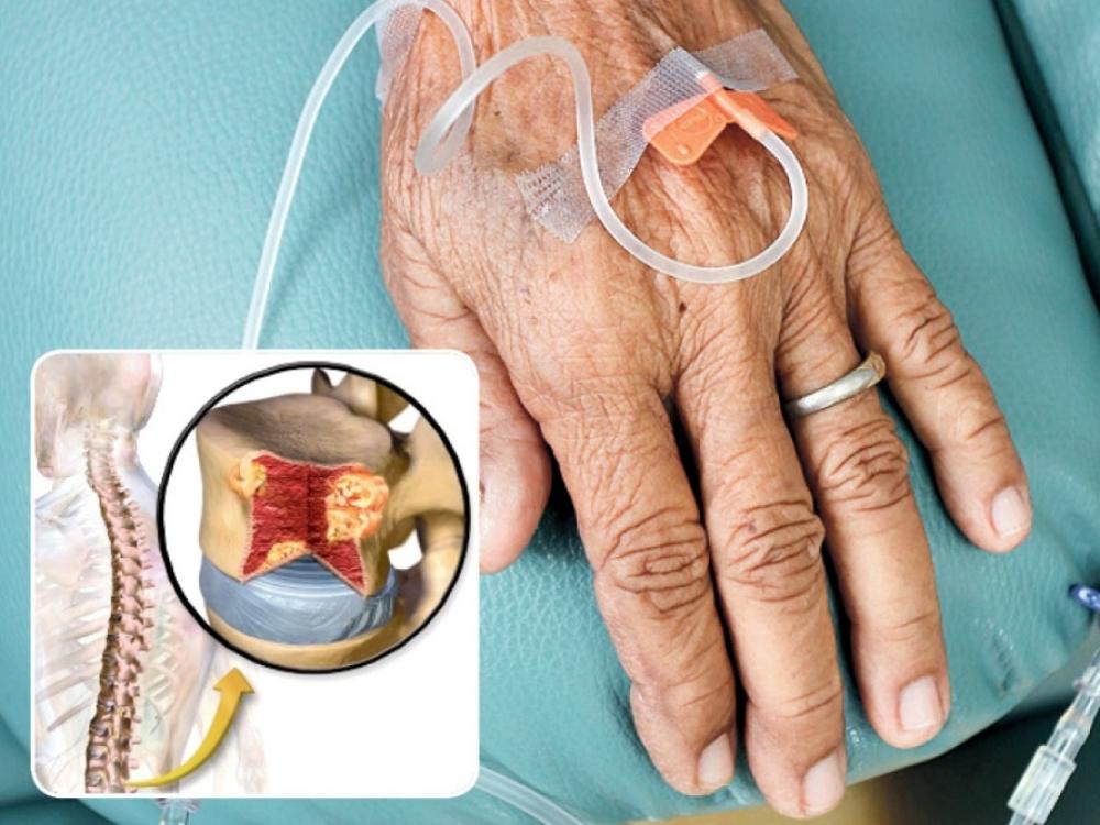 hipertenzijos laikrodis tiršto kraujo su hipertenzija
