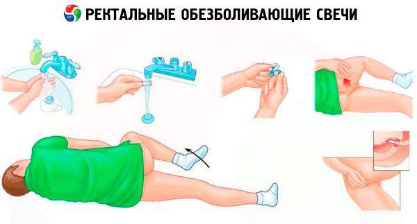 anestezinė hipertenzija