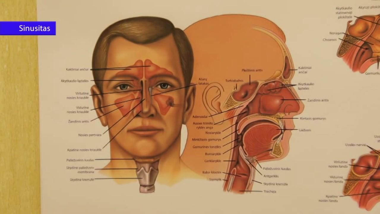 širdies hipertenzija, ką ir kaip gydyti hipertenzijos su anemija gydymas