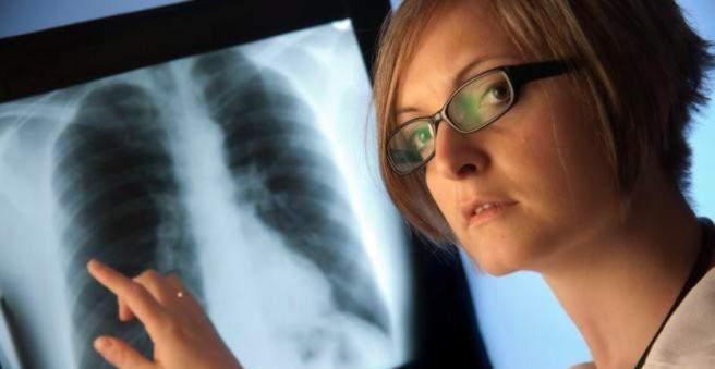 plaučių uždegimas su hipertenzija)
