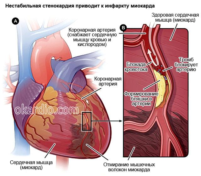 hipertenzijos ir krūtinės anginos gydymas liaudies gynimo priemonėmis)