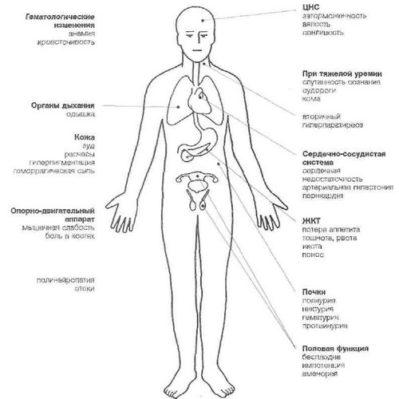 plazmaferezė hipertenzijai gydyti veiksminga dieta sergant hipertenzija