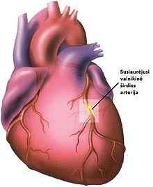 simptomai poveikis sveikatai širdies liga)