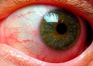angiopatijos hipertenzija)