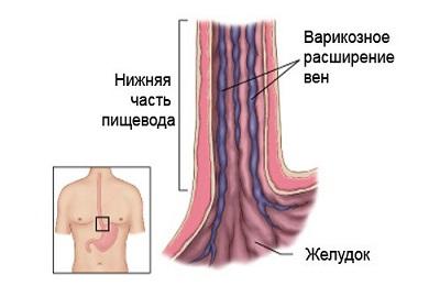 hipertenzija su sutrikusia venų nutekėjimu)