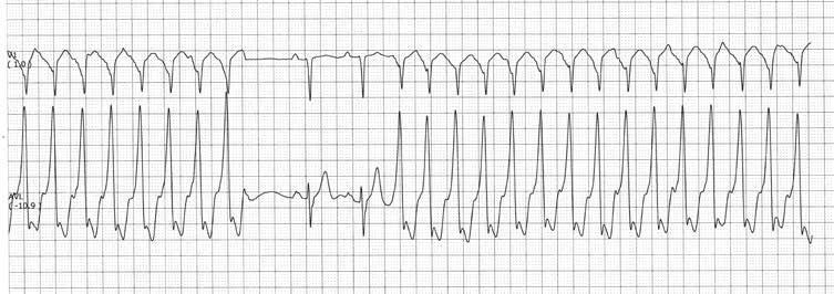 Kas yra pulso trūkumas? - Hipertenzija November