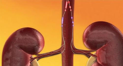 hipertenzija perduodama)