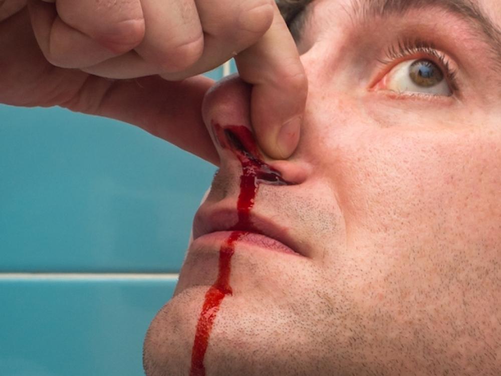 kaip sustabdyti kraujavimą iš nosies su hipertenzija)