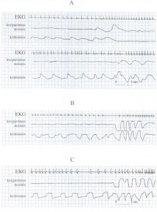 hipertenzija mažai miego