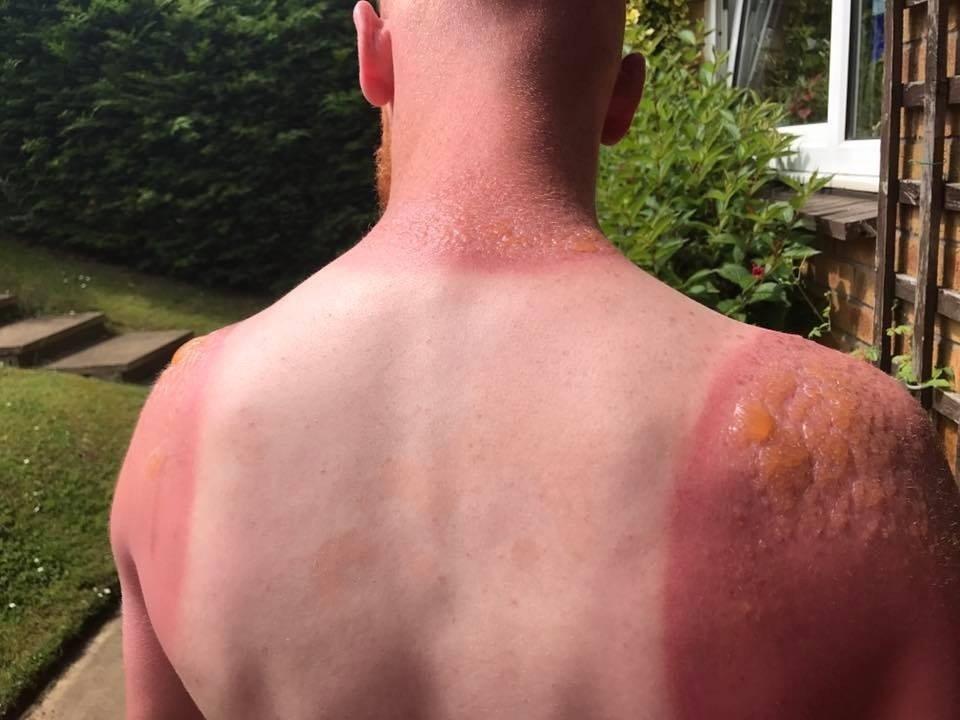 saulės nudegimas su hipertenzija)