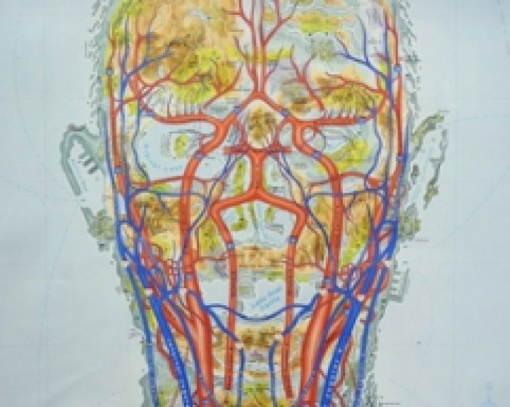 kraujagyslių galvos skausmas su hipertenzija