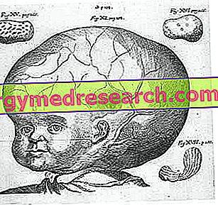 smegenų hipertenzija