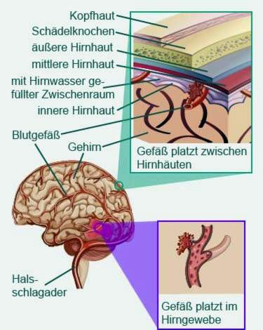 hipertenzija smegenų edema