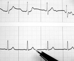 Sutriko širdies ritmas. Ka daryti?