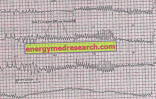 ar įmanoma nustatyti hipertenziją pagal ekg)