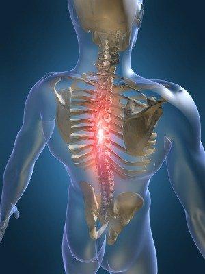 hipertenzija osteochondrozė