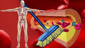 kaip valyti kraujagysles nuo hipertenzijos