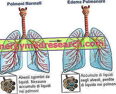 edema su hipertenzija ir