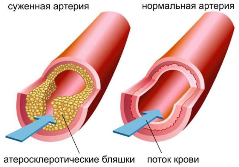 cinquefoil nuo hipertenzijos)