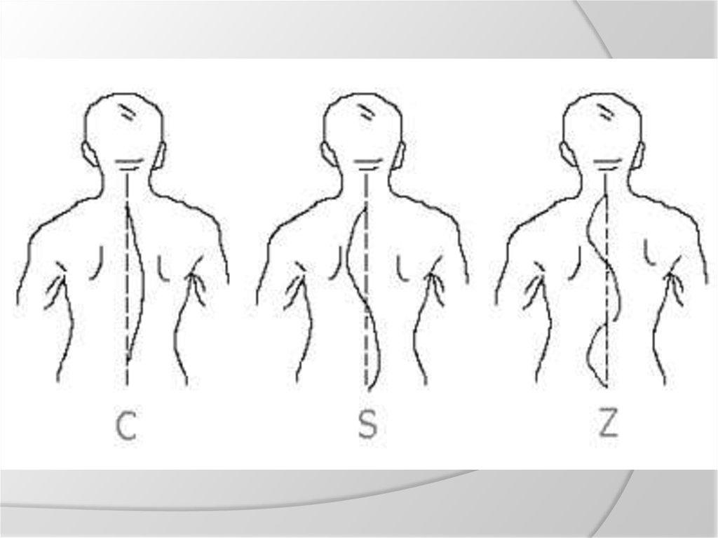 Kineziterapija vertikalioje vonioje – tai gydomoji stuburo ir sąnarių tempimo procedūra vandenyje.