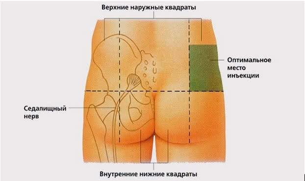 injekcijos į raumenis nuo hipertenzijos