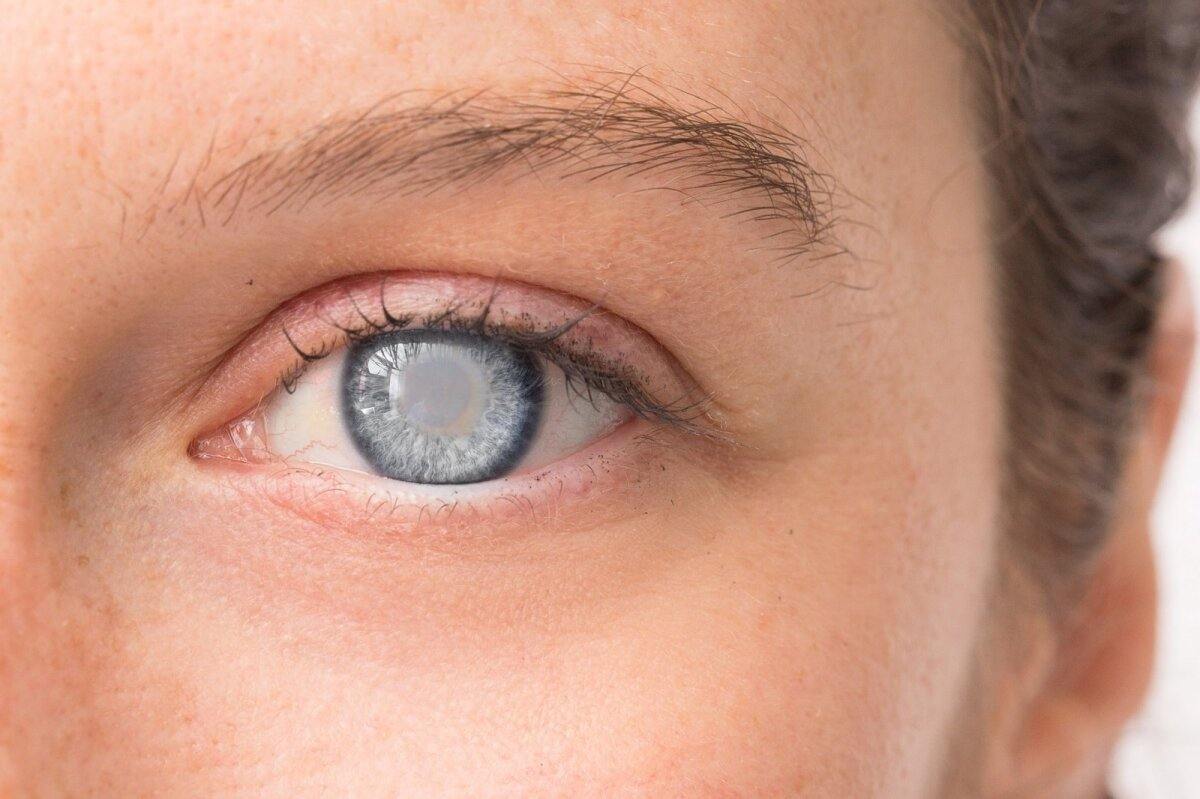 spaudimas su akies hipertenzija)