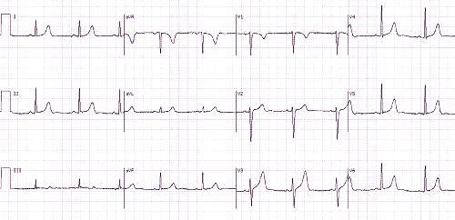 ar EKG gali parodyti hipertenziją)