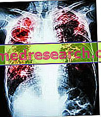 hipertenzija ir jos pakeitimas