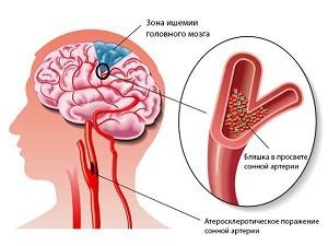 smegenų sukrėtimas ir hipertenzija