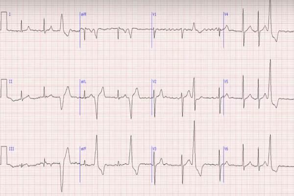 hipertenzija 1 laipsnio ag 3 rizika 2