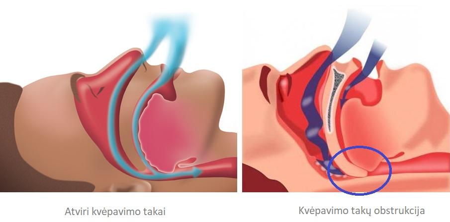 sergate hipertenzija, ar galite miegoti ant pilvo