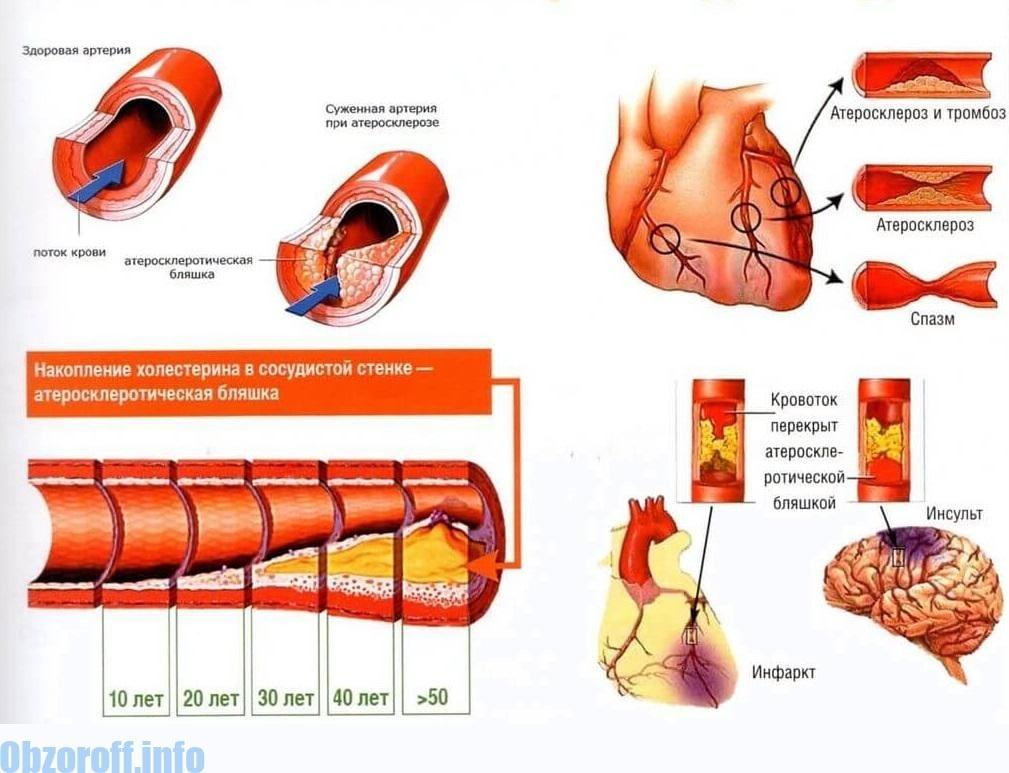 Diabeto priežastys - Aritmija November