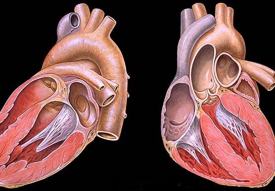hipertenzijos indai akyse hipertenzija ir Himalajų druska