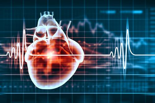 hipertenzijos procesas)