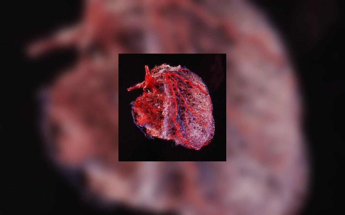 gydant širdies plakimą dėl hipertenzijos