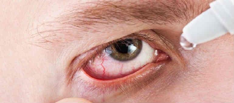 akies indų hipertenzija