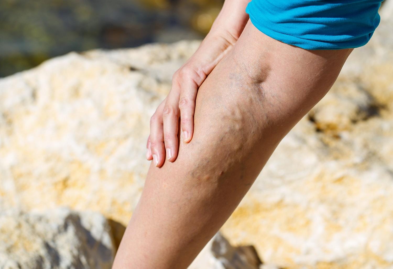hipertenzija kojų mėšlungis)