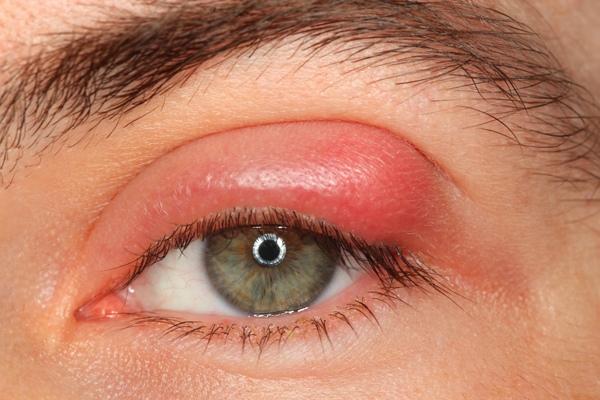 akių vokų patinimas su hipertenzija)