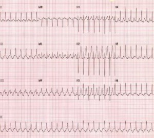 kokia aritmija su hipertenzija