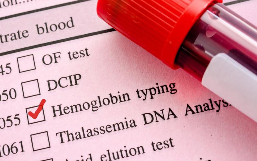 padidėjęs hemoglobinas ir hipertenzija)