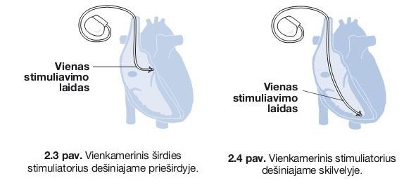 geriausi širdies sveikatos pratimų tipai gerti nuo hipertenzijos