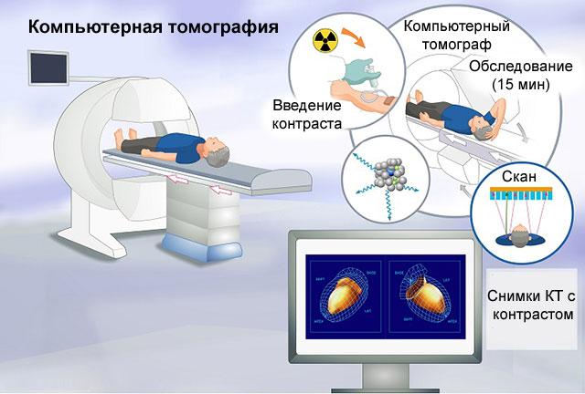 korteksinas ir hipertenzija)