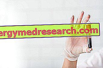 hipertenzijos su anemija gydymas