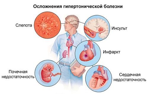 hipertenzija 1 laipsnio rizika 2 etapas 3 laipsnis)