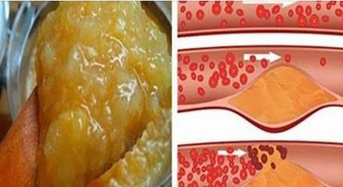 vaistinės bruknių savybės hipertenzijai gydyti