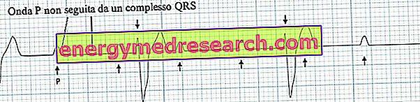 Miokardo EKG pokyčiai - ką reiškia diagnozuoti