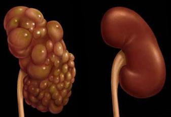 hipertenzija nuo inkstų cistų)