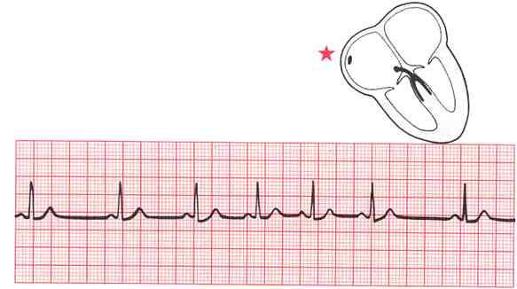 Hipertenzijos gydymas novokainu
