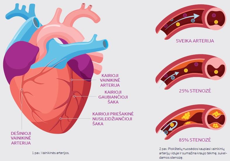 hipertenzijos kraujagyslės susiaurėja)